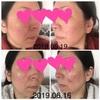 皮膚炎になって11ヶ月。