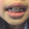 歯科矯正2ヶ月で変化はあるの?ビフォーアフター