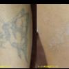 圧倒的症例数!ピコレーザー(エンライトン)でタトゥーを除去をしました。 2回治療後です。1色
