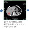 027【ズバリ!βグルカンの抗腫瘍効果!!(その2)】「抗がん剤との併用で原発性大腸がんからの肝臓転移がん2つが見事消失!!~ヒトでの症例報告~」