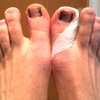 How To Treat Hammer Toes Without Surgery