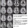 指定難病の亜急性硬化性全脳炎(SSPE)の症状について軽く紹介する。ウイルス性の脱髄疾患だが発症したら待っているのは死…?