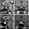 症例95:分娩翌日から頭痛を発症した40歳女性(Am J Emerg Med. 2021 Jan;39:258.e5-258.e6.)