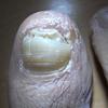 汗疱状湿疹が回復途中