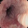 今週のカンファ:狭心症の原因としての大動脈弁狭窄症/畳目模様/コリン作動性クリーゼ