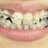 No.17 下の歯にも器具がつきました!でも痛いよ〜〜〜!