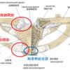 脊椎関節炎と前胸壁痛