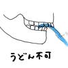 顎変形症治療 [歯列矯正編]