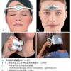 (2019年のAFP Journal トップ20)  3位 片頭痛による痛みの予防