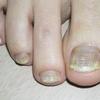 爪水虫が恥ずかしい人のための飲み薬と塗り薬での治し方