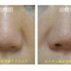 鼻先をツンとしました。鼻先のヒアルロン酸治療です。