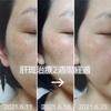 美容皮膚科で肝斑治療③ 診察日