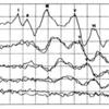 聴性脳幹反応の見方