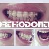 歯科矯正:下ワイヤー