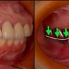 一口腔単位での治療