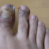 汗疱状湿疹(6)