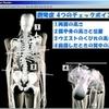 側彎症の4つのチェックポイント図