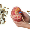 Obat herbal kencing batu ginjal yang ampuh