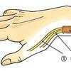 手首の痛みの原因となる「ドケルバン病」について整形外科医が解説してみました