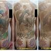 背中~腰まで広範囲のマルチカラータトゥーのインクを取り除きます