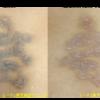 圧倒的症例数!ピコレーザー(エンライトン)でアイライン除去をしています。 8回治療後です。他院ですでに瘢痕になり、かつ取り切れなかったタトゥー
