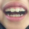 歯科矯正4ヶ月のキロク。スタート時からの変化を比較