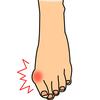 外反母趾だから好みの靴がはけない・・・