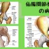 仙腸関節機能障害の病態