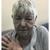 症例:CMAJ 84歳女性 顔が灰色ですが??