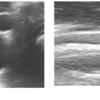 パーキンソン病の診断における迷走神経超音波検査の有用性|神経内科の論文学習
