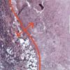 発見時には一大事⁈『血管肉腫』って何?② ~症状・検査法~