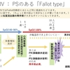 DORV(両大血管右室起始症) その5 {S.D.N}DORV Fallot type、primary IVFとsecondary IVFについて  〜疾患40