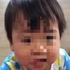 顔がツルツル! 背中のジュクジュクの原因は何? にーちゃん1歳6ヶ月
