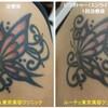 腕のちょうちょのタトゥーの赤インクを消しました