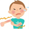 左右対象に症状が出るアトピー  性皮膚炎の特徴とは