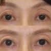 眼瞼下垂修正 幅広二重を狭くする ふんわりとしたつりあげ法。