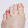 【家庭の小事故】足の指の股割り骨折への対処法