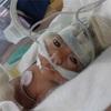 438gで生まれた超早産、超低出生児その④