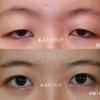 がっちり一重は眼瞼下垂手術が最適です。 20代女性
