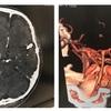 2年8ヶ月かけてやっと造影CTが受けれました