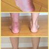 アキレス健断裂の手術から3ヶ月