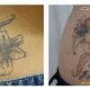 腰の黒いタトゥーです。1回でもシッカリと効果がわかりました