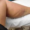 入院12〜13日目 さようなら車椅子 リハビリも過酷さを増してきた