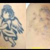 圧倒的症例数!ピコレーザー(エンライトン)でタトゥーを除去をしています。 2回治療後です。