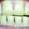 歯が白くなる歯磨きを使ってみる アパガード プレミオ プレミアムタイプ  14日目