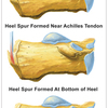 The Right Way To Identify Posterior Calcaneal Spur