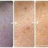 【シミ取り1週間後】美容皮膚科でスーパーフォト治療(スターラックス1回目)