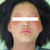 アトピー性皮膚炎の改善写真(女子中学生)