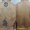 背中一面の黒タトゥーが薄くなりました