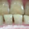 歯が白くなる歯磨きを使ってみる アパガード プレミオ プレミアムタイプ  20日目